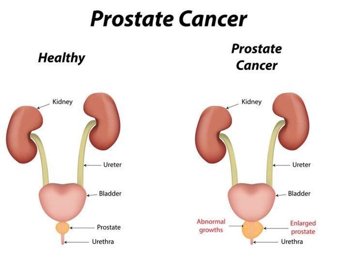 Prostate Cancer Alternative Treatment